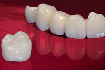 تركيبات الاسنان الثابتة والمتحركة