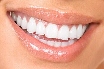 تبييض الاسنان وازاله التصبغات