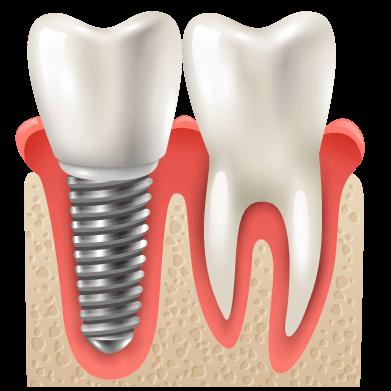 نستخدم التقنيات الحديثة لتجميل وتقويم وزراعة الأسنان