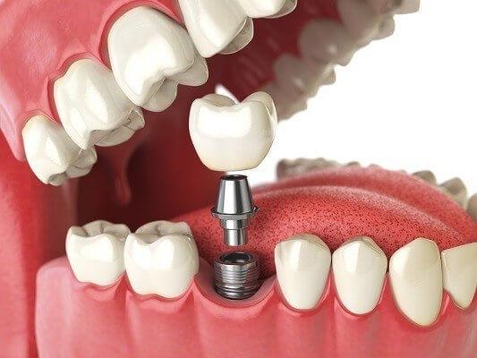 مركز سيتى دينت لتجميل وتقويم وزراعة الأسنان