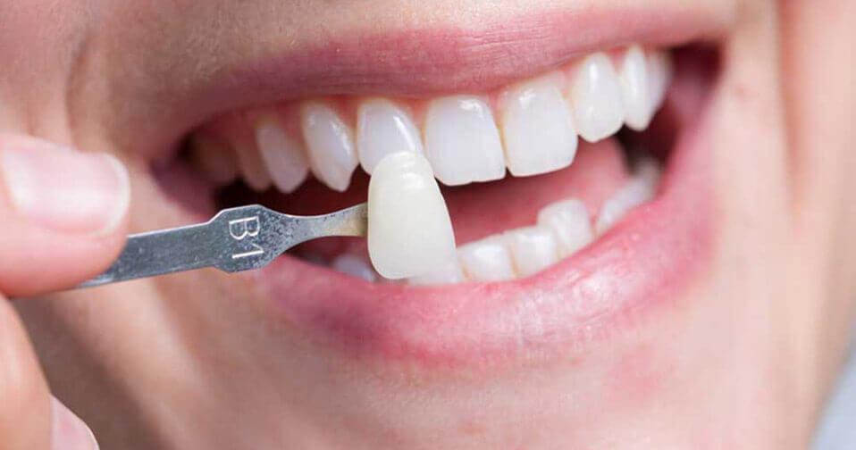 العدسات وقشره الاسنان اللاصقه